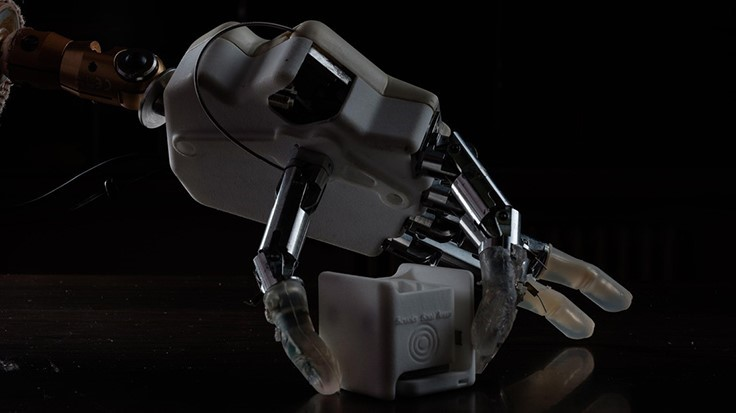 Prosthetic restores the sense of the hand |todays medical developments