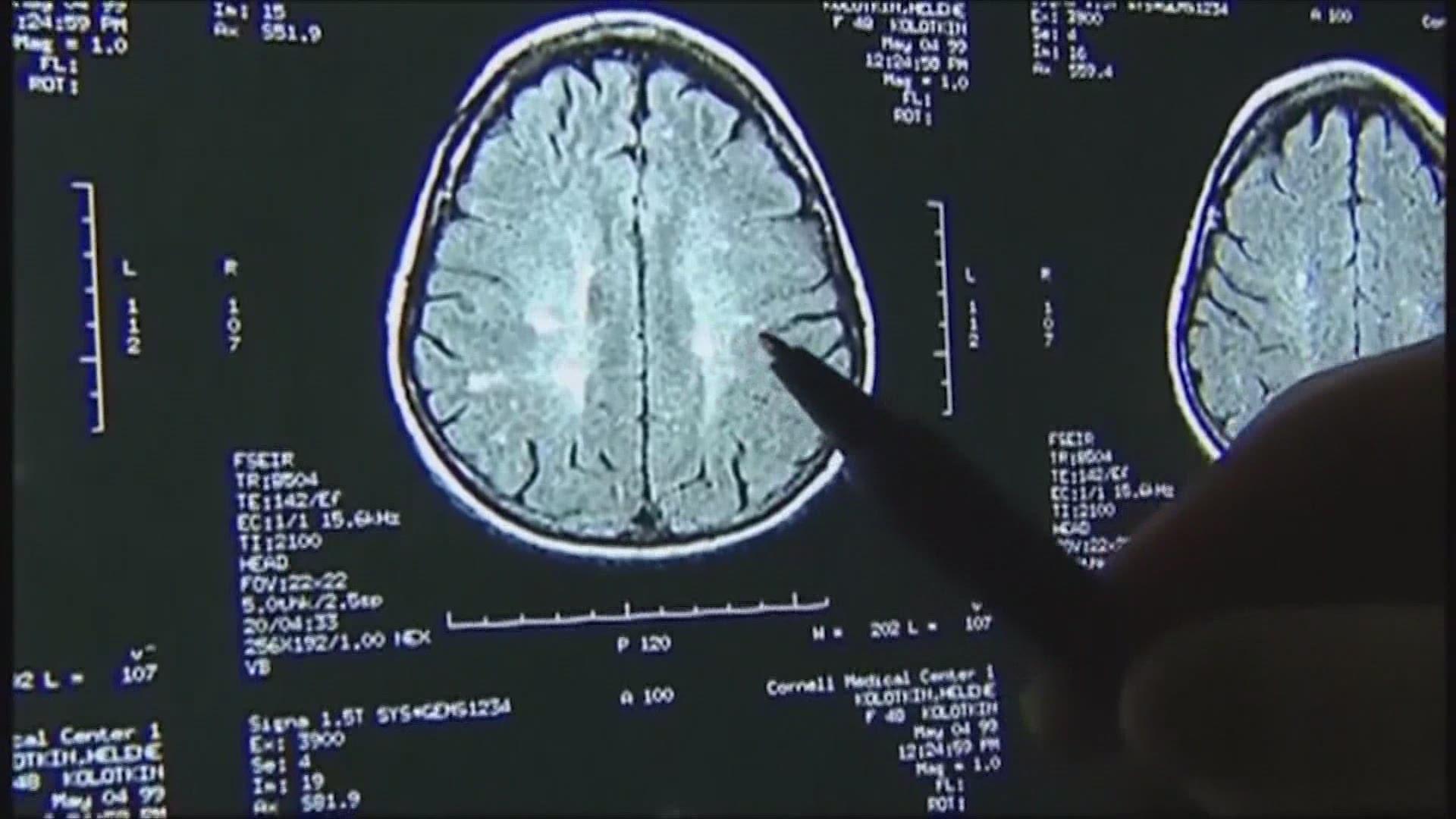 Study indicates COVID-19 causes brain damage, even in mild cases | CTV News